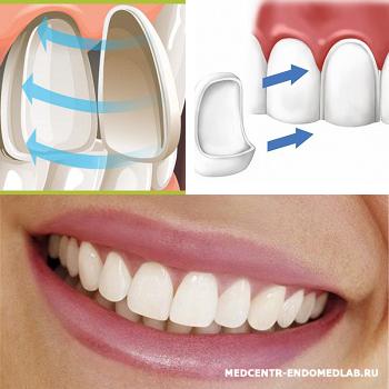 виниры вред для зубов